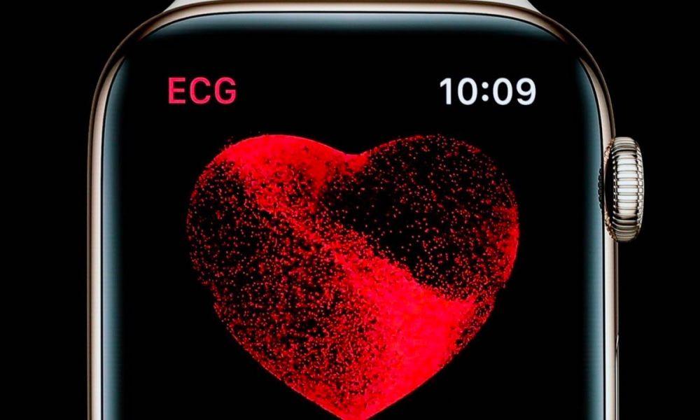 Apple Watch Ecg1