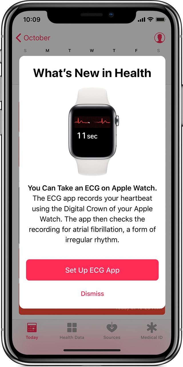 Ios12 Iphone X Watchos5 Series4 Set Up Ecg App