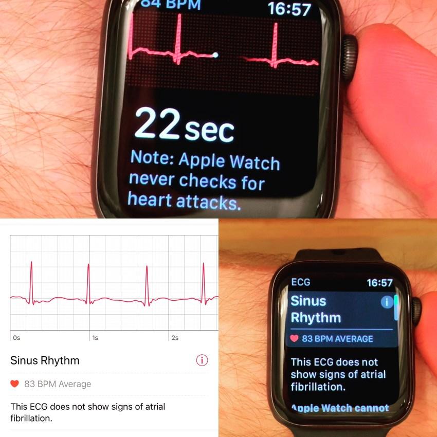 Apple Watch Ecg 2