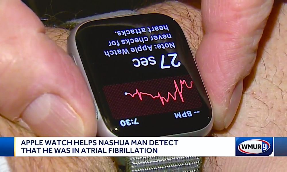 Apple Watch Series 4 Afib